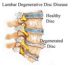 degenerative disc photo